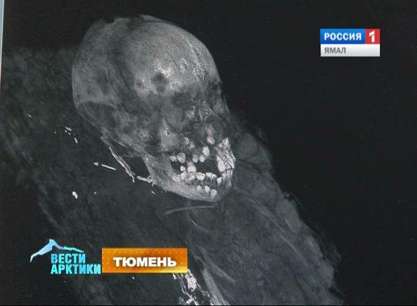 Томография мумии мальчика, найденного на Ямале