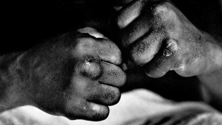 Знакомство с печальными последствиями: в Новом Уренгое вахтовик жестоко избил собутыльника