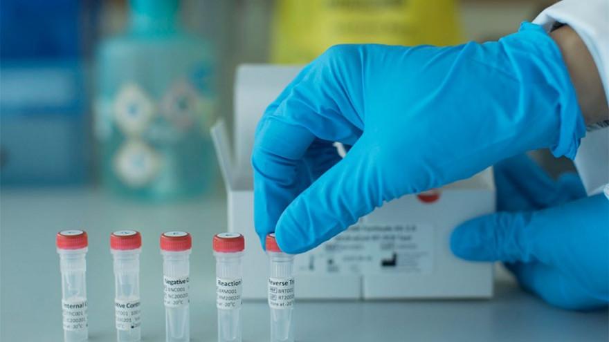 Коронавирус продолжает наступление: на Ямале подтверждено 178 новых случаев заражения