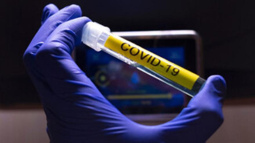 11 марта коронавирусом заразились 18 жителей Ямала, остальные случаи - завозные