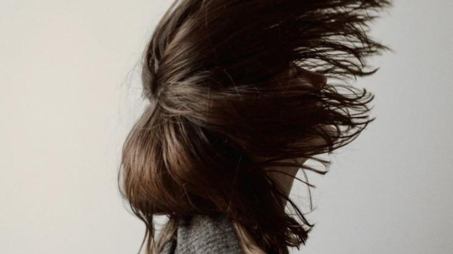 Выпадение волос: 5 причин, которые нельзя игнорировать
