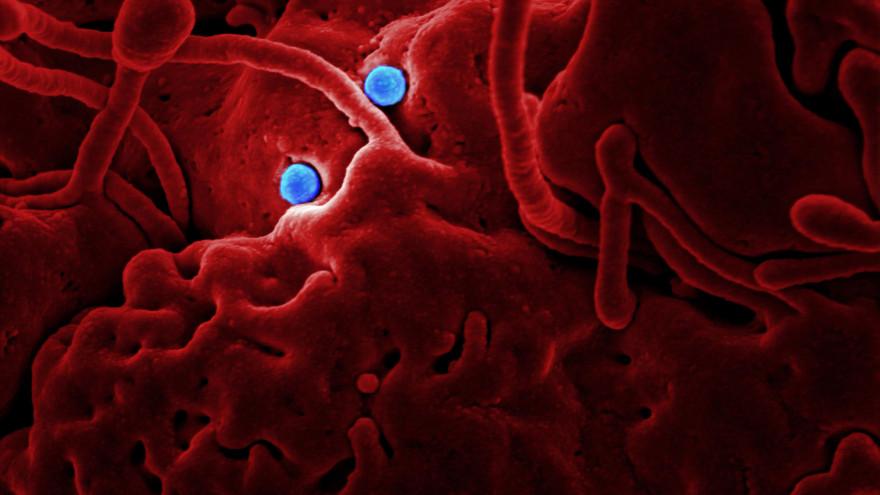 Эксперт РАН прокомментировал сообщения в СМИ о эпидемии неизлечимой половой инфекции
