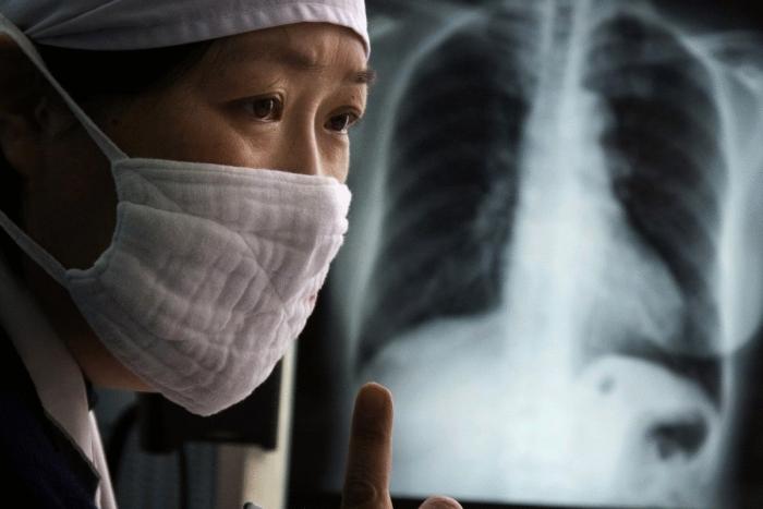 Названа самая смертоносная болезнь, которая опередила СПИД